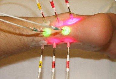 Lokale Lasertherapie der Achillessehne